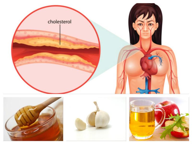 гиперхолестеринемия диета и лечение