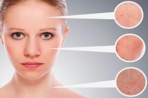 lechenie-seborejnogo-dermatita