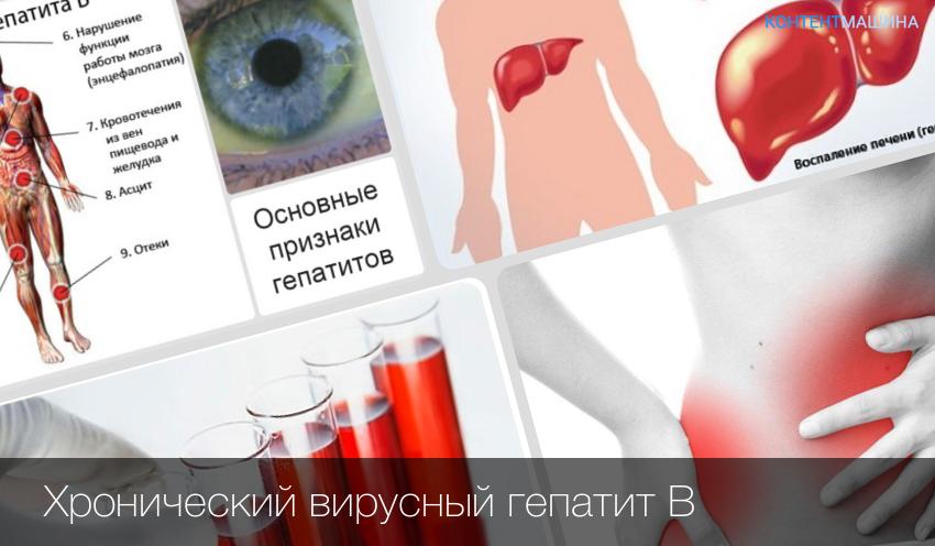 Можно лечить гепатит с в домашних условиях