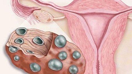 Поликистоз яичников лечение народное лечение