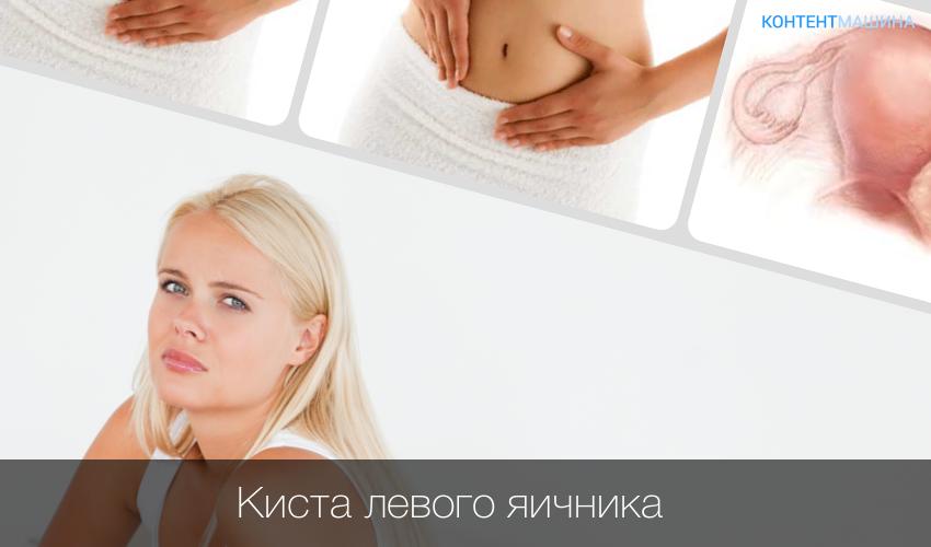 Киста яичника - причины симптомы виды диагностика и лечение у опытных врачей
