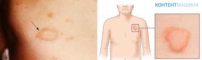 Розовый лишай жибера лечение