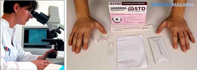 Диагностика гонореи: основные методы и типы