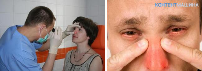 Грибок в гайморовой пазухе симптомы и лечение в
