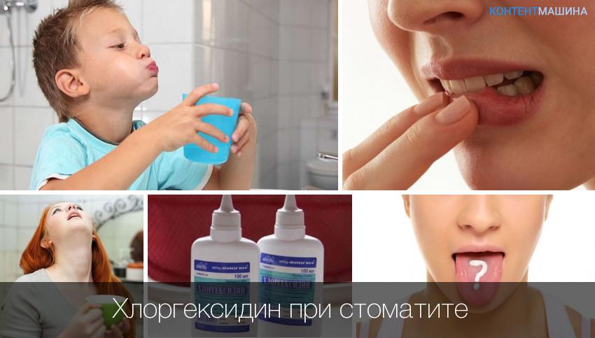 Схема лечения стоматита детей