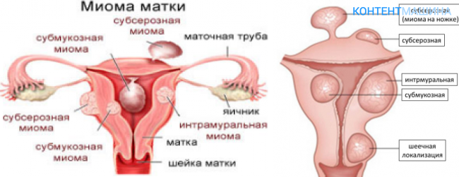 Миома матки симптомы и лечение народными средствами