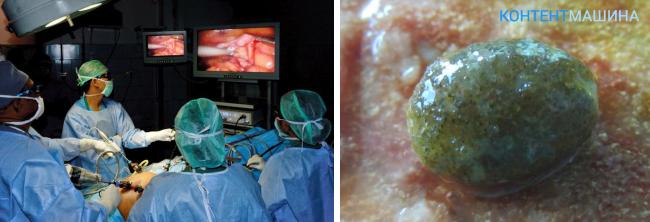 Как вывести камень из желчного пузыря в домашних условиях 468