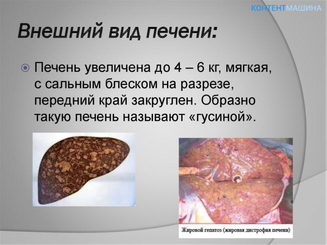 Жировой гепатоз печени анализ крови Справка из психоневрологического диспансера Коптево