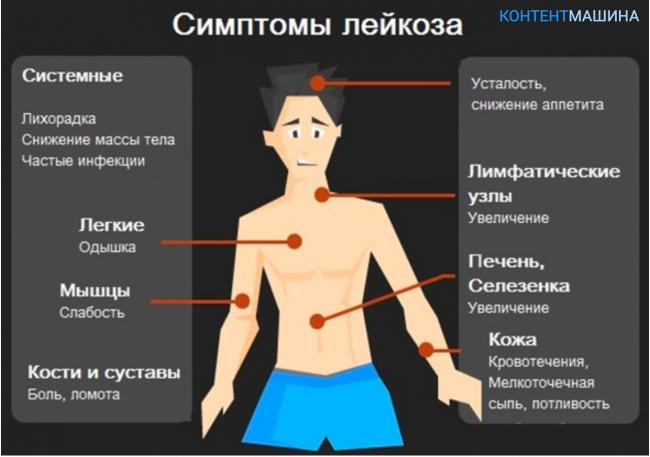 инфекционное заболевание боль в суставах отек суставов сыпь макуло папулезная