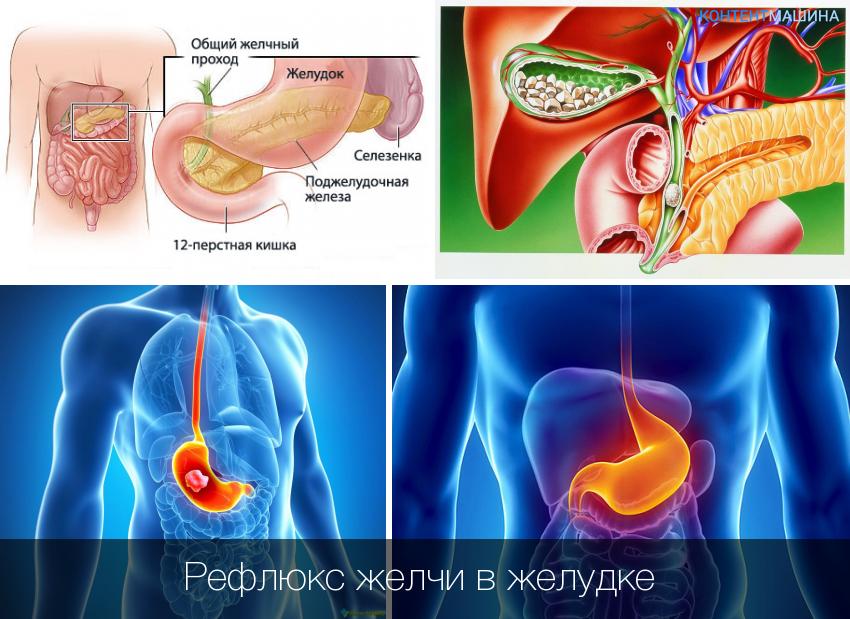Гастрит и язва желудка: основные признаки и способы лечения