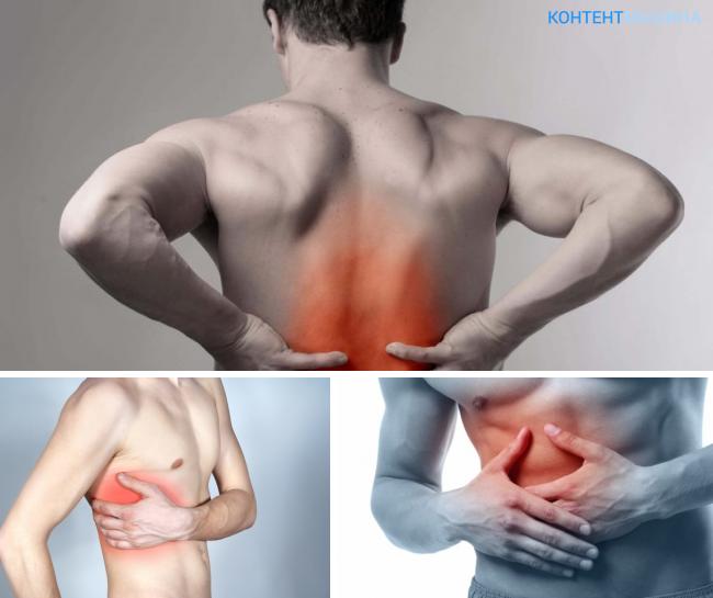 Как вылечить мышечную невралгию и на какие симптомы обращать внимание