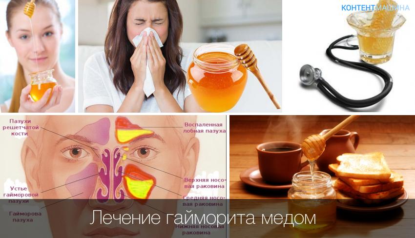 Чем народным лечить гайморит в домашних условиях