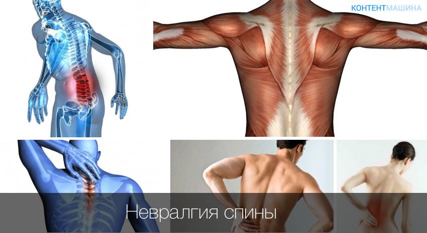 Невралгия в спине симптомы