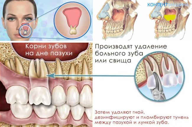 Удалить зуб корни в пазухе