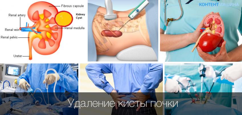 Методы лечения кисты почки