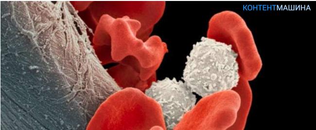 4 видео: симптомы и лечение лимфобластного лейкоза у детей и подростков.