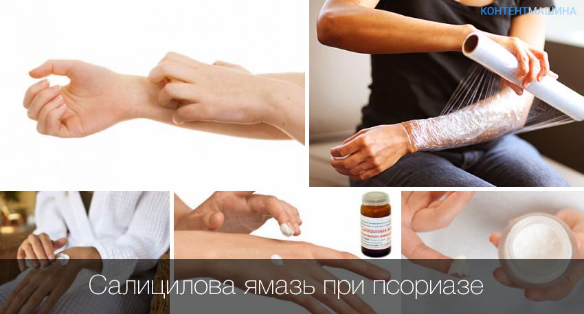 Псориаз На Нервной Почве Лечение