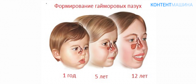 Признаки, симптомы и лечение гайморита у ребенка от 2 лет