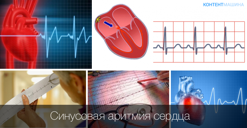 Симптомы синусовой аритмии сердца