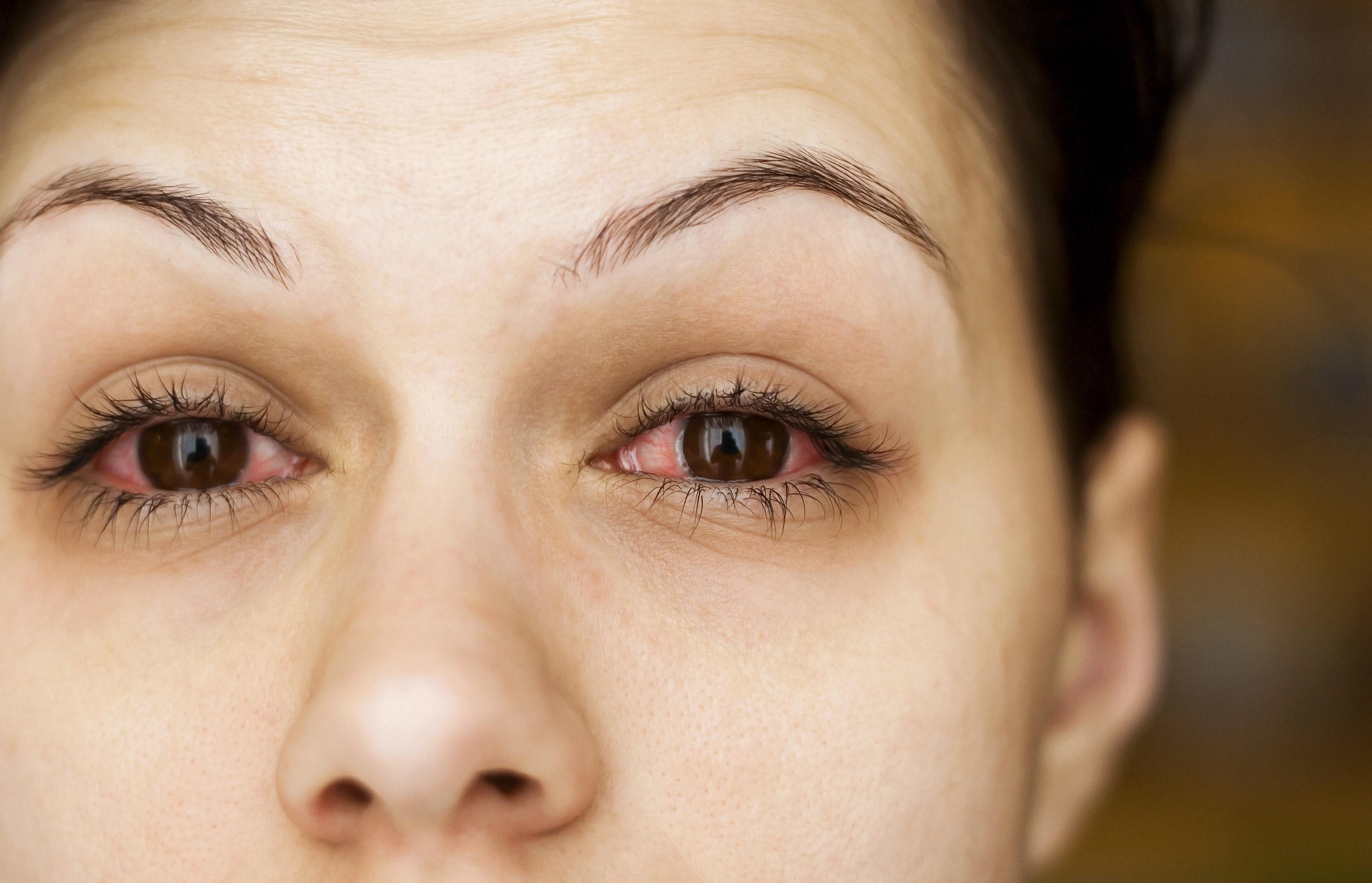 Картинки по запросу аллергия на глазах