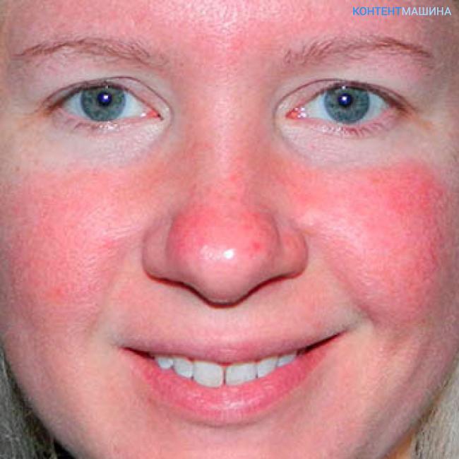 типы аллергии и их проявления