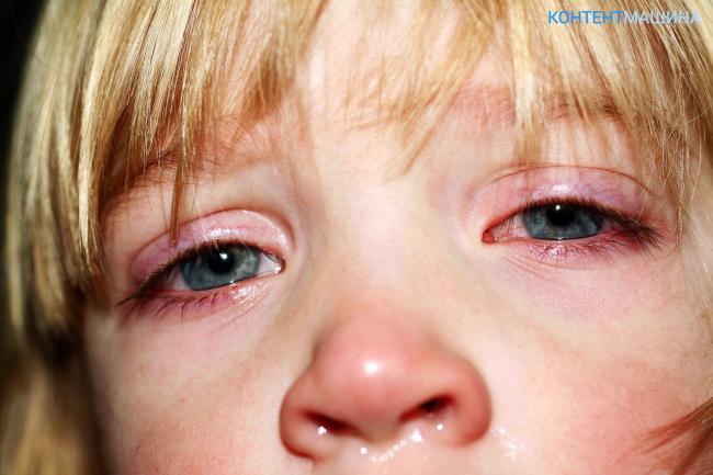 что дерматит и отек глаз при лямблиозе джакузи, плавательный