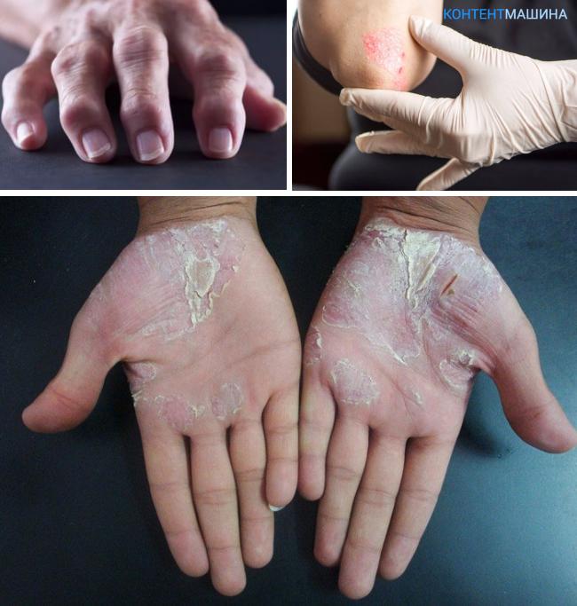 Как выглядит псориаз на руках и чем его лечить?