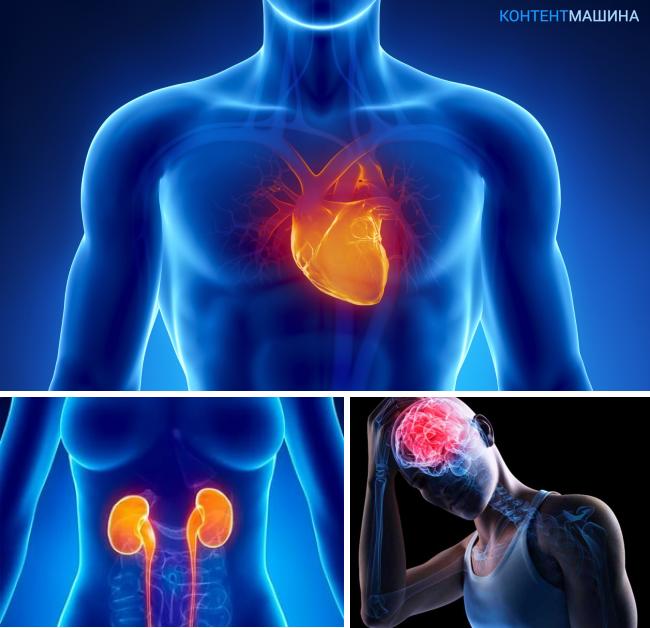 Причины брадикардии сердца и лечение недуга