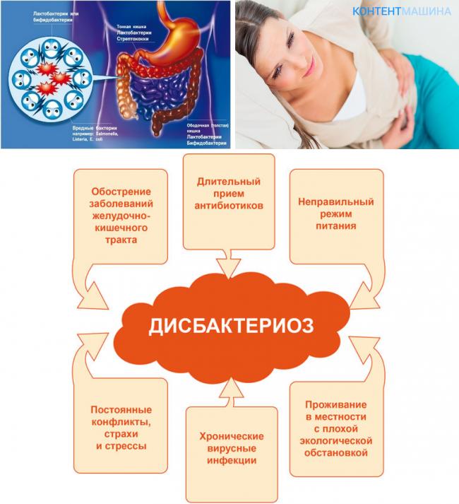 Как лечить дисбактериоз кишечника в домашних условиях