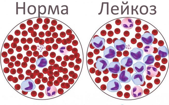 Лейкозы классификация