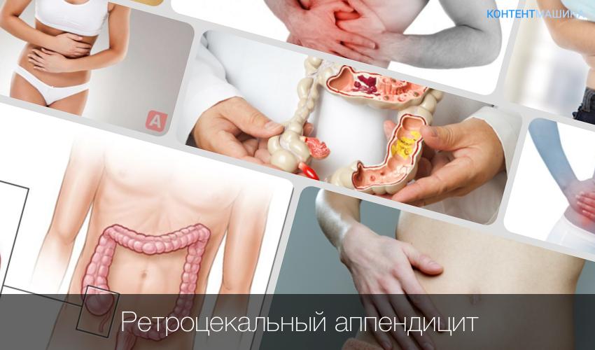 apendicita regim alimentar