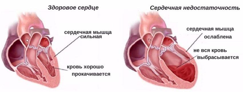 Заболевание бычье сердце лечение сердца