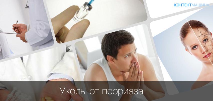 Псориаз Хронический Лечение