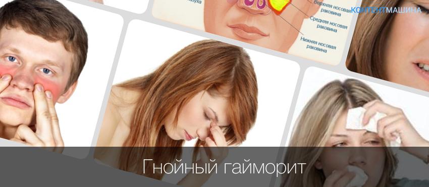 Признак гайморита у взрослых лечение в домашних условиях