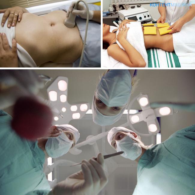 Какое лечение хронической гонореи у женщин наиболее эффективное?