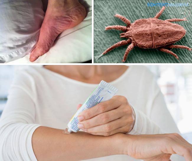 Потница или аллергия, как отличить заболевания?