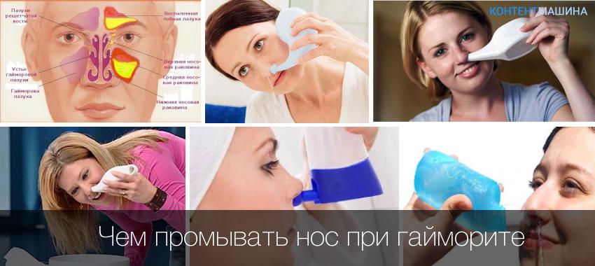 Чем промыть нос в домашних условиях при гайморите 3