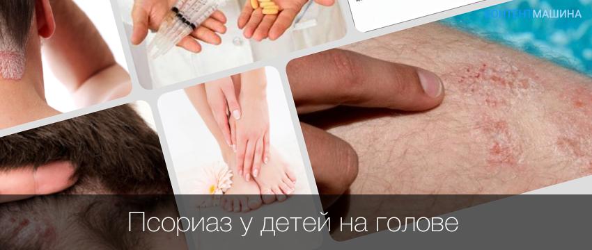 Псориаз у детей народное лечение