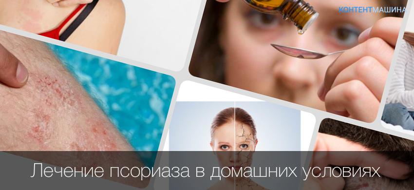 Лечение Псориаза Пиявками