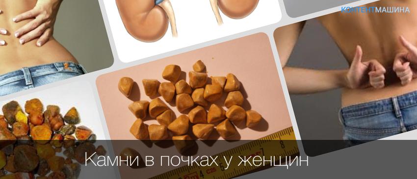 Камни в почках и диета