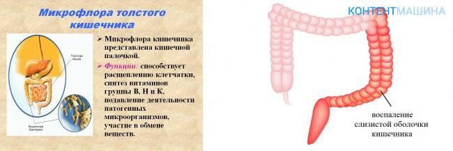 Диета при грибке кандида в кишечнике