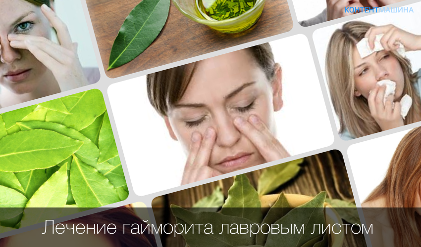 Гайморит симптомы лечение в домашних условиях лавровым