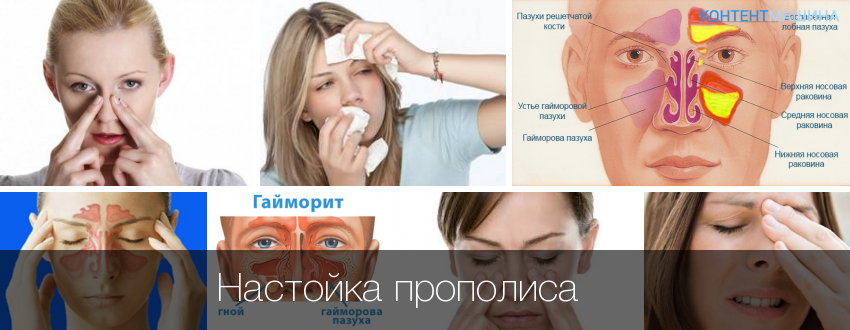 Народное как лечить гайморит в домашних условиях
