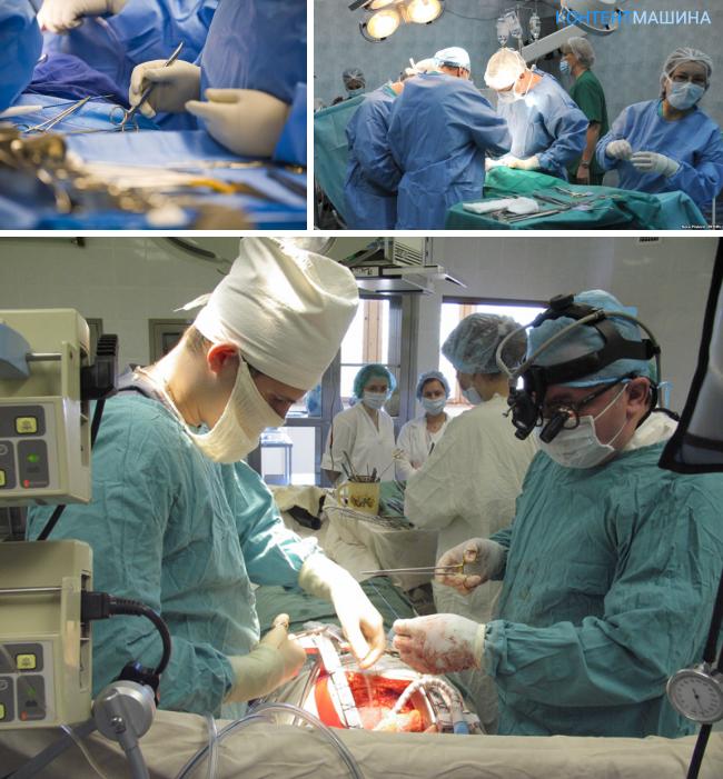 Лечение портальной гипертензии при циррозе печени
