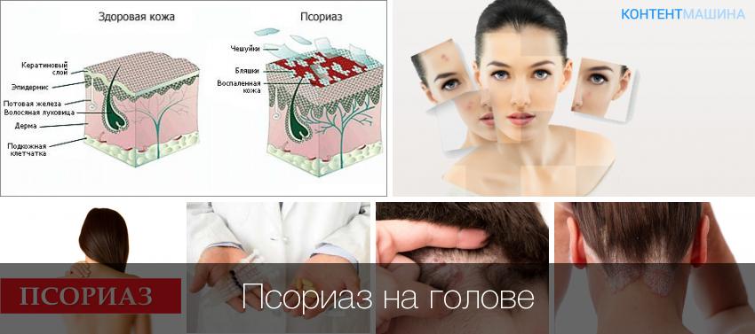 Народные Способы Лечения Псориаза