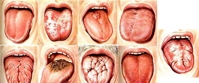 Возможно ли лечение стоматита у взрослых народными средствами