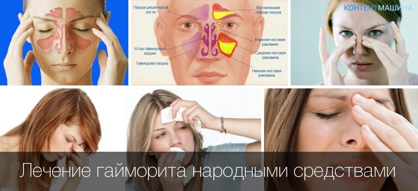 Лечение гайморита в домашних условиях народные средства