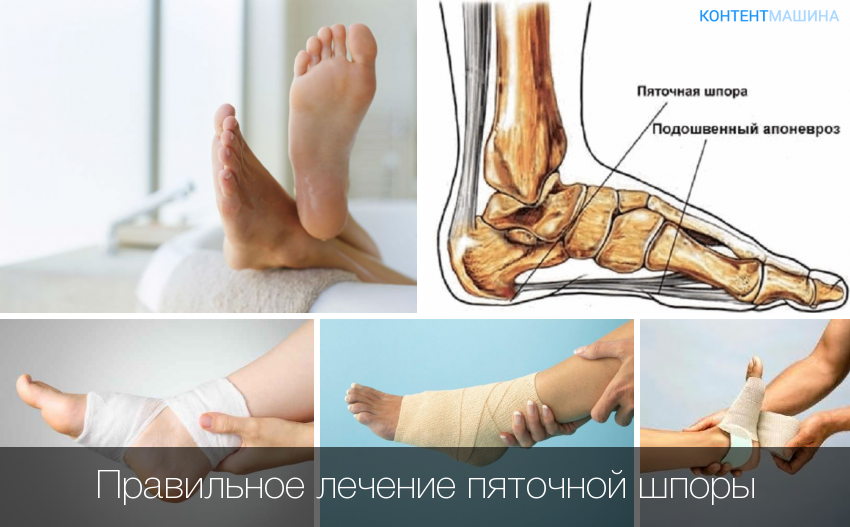 Пяточная шпора симптомы и лечение в домашних условиях димексидом 378