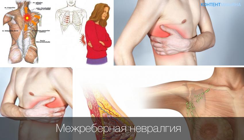 Межрёберная невралгия справа симптомы и лечение в домашних условиях