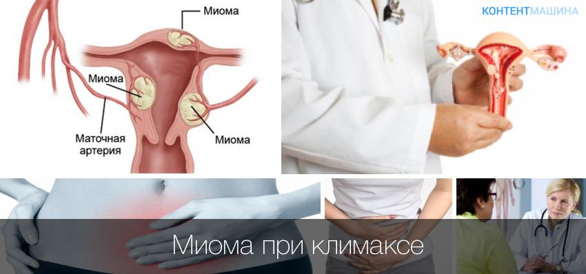 Миома и рак матки
